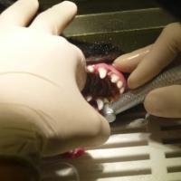 Polieren der Zähne
