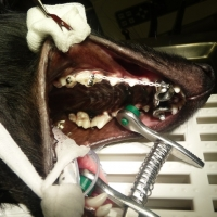 komplette Zahnspange
